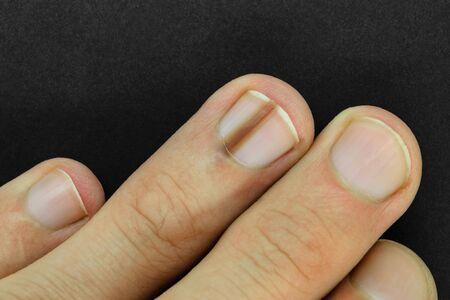 Vista superior de la mano masculina con línea marrón en una de las uñas del dedo mejor conocida como melanoniquia (pigmentación de las uñas) en la superficie de fondo negro y mate