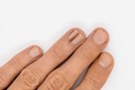 Top view of male hand with brown line on one of the finger's nail better known as melanonychia (nail pigmentation) on white background with copy space