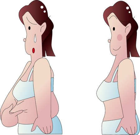 fat stomach 写真素材 - 104934954