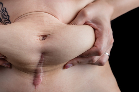 loose skin: A woman with a tattoo grabbing the loose skin on her stomach after giving birth by c-section. Stock Photo