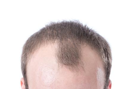 hombre calvo: Un macho blanco con Entradas de pelo marrón sobre un fondo blanco. Foto de archivo