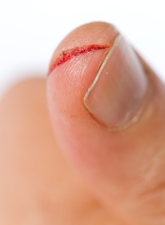cut and blood: injured finger Stock Photo