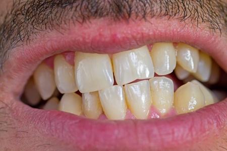 caucasian man teeth