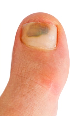 big toe Stock Photo