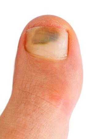 big toe Imagens