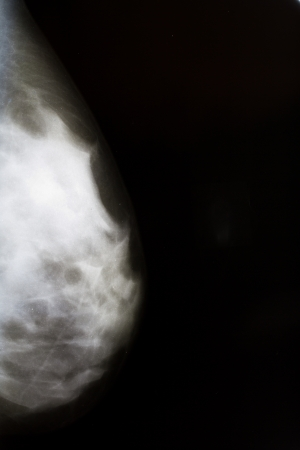 woman breast xray