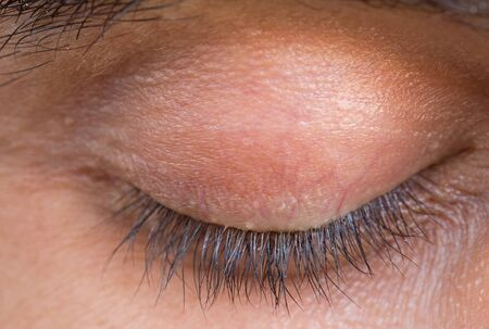 eyelid: eyelid