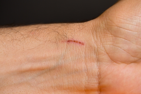 cut wrist: scab over wrist closeup Stock Photo