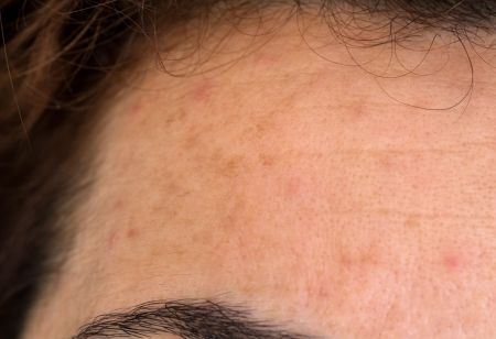 Woman forehead