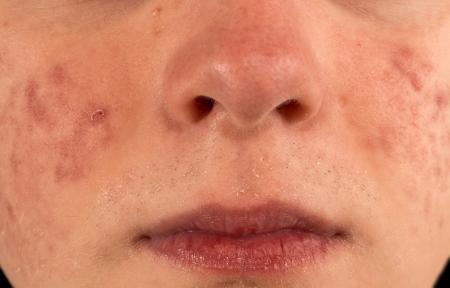 Severe Acne Imagens