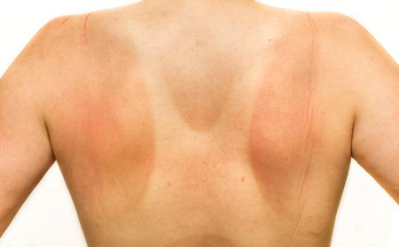 Vista posterior de la mujer que olvidó el protector solar