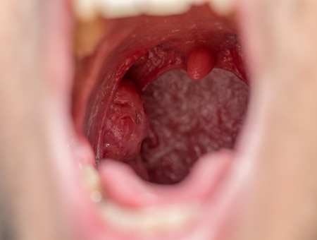Open mouth view of tonsils photo