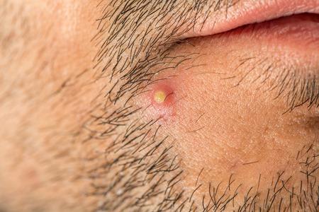 pus: Caucasian man with stub and big pimple
