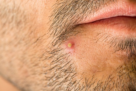carbuncle: Caucasian man with stub and big pimple