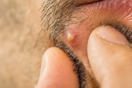 abscess: Extreme closeup of caucasian man with stub squeezing a pimple