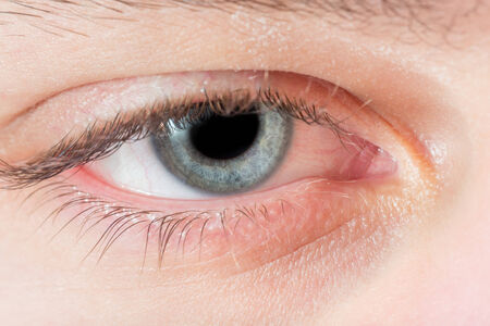 blue eye: Closeup of caucasian man right blue eye