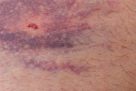 detailed view: Detailed view of big bruise over caucasian skin Stock Photo