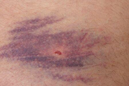 bruise: Detailed view of big bruise over caucasian skin leg
