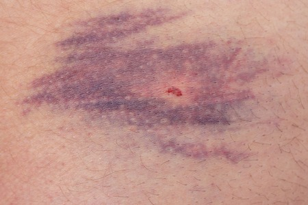 detailed view: Detailed view of big bruise over caucasian skin leg