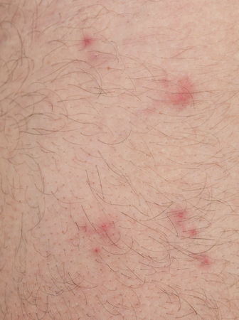 closeup of many flea bites