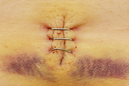 Metal staples in a scar with bruise