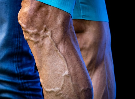 Cyclist legs with varicose and protruded veins
