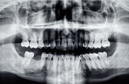 Panoramic dental X-Ray with one back tooth hole Stock Photo