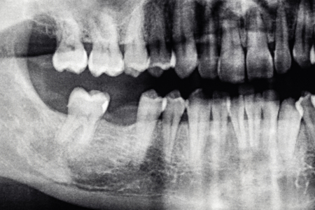 Dental X-Ray with back tooth hole, caucasian man Stock Photo