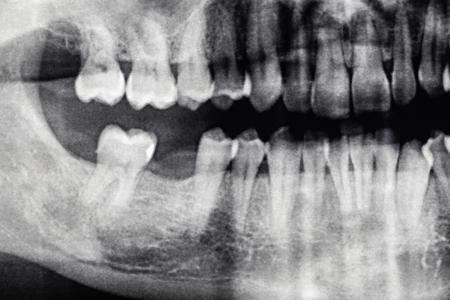 Radiografia dentale con foro del dente posteriore, uomo caucasico Archivio Fotografico