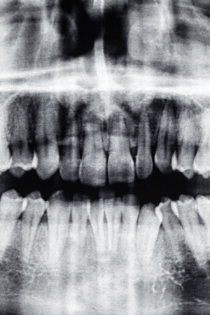 Dental X-Ray of front teeth and nose Фото со стока