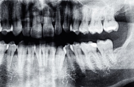 Dental X-Ray or the left side of tooth, caucasian man Stock Photo