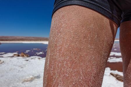 Man leg with salt after swimming in Atacama salt lakes Reklamní fotografie - 122142826