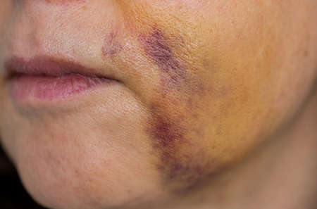 Unrecognizable woman with bruises in the face