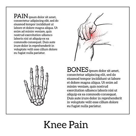 bulletins: Painted knee pain. Discomfort in a joint leg. Symptoms of motor functions in humans.Template medical bulletins. Illustration of human hand bones. Vector sketch illustration legs. Hands hold the knee Illustration