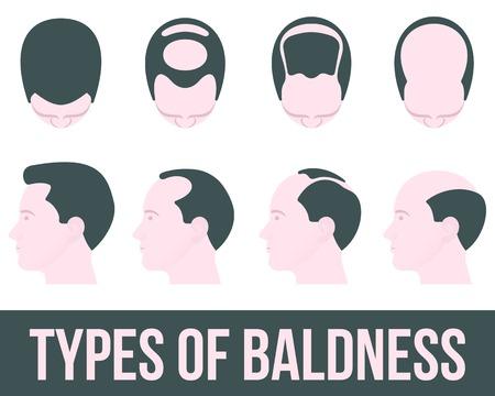 Die Stufen der Haarausfall und Haarbehandlung, Vektor-Illustration flach ist auf einem weißen Hintergrund, verschiedenen Stadien der Haarausfall, Haarbehandlung und transplontatsiya Farbe, Gesundheit Vektorgrafik