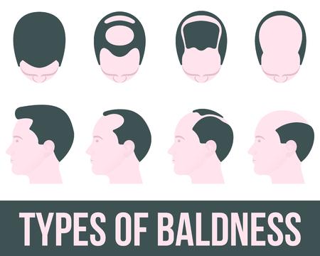 Die Stufen der Haarausfall und Haarbehandlung, Abbildung flach ist auf einem weißen Hintergrund, verschiedenen Stadien der Haarausfall, Haarbehandlung und transplontatsiya Farbe, Gesundheit
