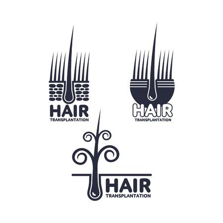 Set of hair transplantation logo, logotype templates, vector illustration isolated on white background. Hair loss treatment logos for medical hair transplantation centers showing deep epidermis layers Ilustracja