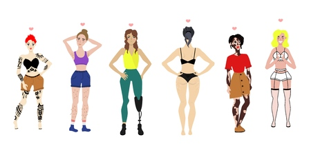 Body positive women set. young female characters with vitiligo skin disease, leg prosthesis handicap, tattoo all the body, cellulitis and excessive hair on legs, armpit. Vector flat illustration