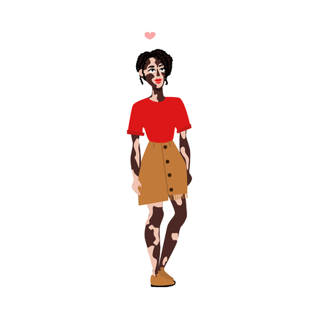 Happy smiling young woman with vitiligo skin disease. Spotted skin with wrong pigmentation girl in skirt, red tshirt, red lipstick. Body positive concept. Vector flat isolated illustration