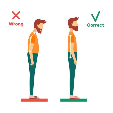 Cuello correcto, incorrecto, alineación de la columna vertebral del personaje de dibujos animados joven de pie. Posiciones de flexión de la cabeza, inclinación del cuello. Concepto de cuidado de la columna vertebral. Vector ilustración aislada