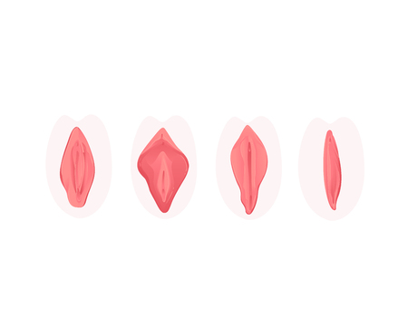 Vector vagina plastic surgery concept with stages of clitoris surgery. Female labia correction. Labiaplasty ro vaginoplasty medical operation. Gynecology and labia lips. Isolated illustration Иллюстрация