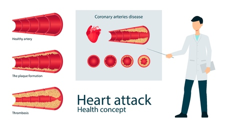 Vector atherosclerosis, coronary arteries desiase heart attack awareness concept with male doctor poiting to vessels poster. Cholesterol thrombosis red cells illness. Healthcare medical problem design
