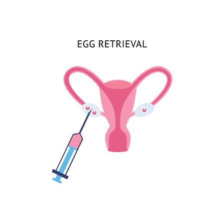 Female egg retrieval for fertilization, fertility cell surgery procedure with pink fluid syringe, cartoon style uterus anatomy, gynecology-themed flat vector illustration isolated on white background