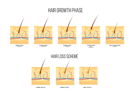 Scheme of human hair loss stages and growth phase flat style, vector illustration isolated on white background. Diagram of hair follicles condition, anatomical medical infographics