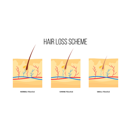Human hair loss scheme flat style, vector illustration isolated on white background. Graphic diagram of hair follicles condition with hair growth problem, anatomical medical infographics
