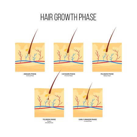 Esquema de etapas de crecimiento del cabello humano estilo plano, ilustración vectorial aislado sobre fondo blanco. Diagrama de folículos pilosos en fases anágena y catágena y telógena, infografías médicas anatómicas