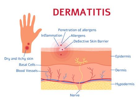 Dermatite diagramma grafico stile piano, illustrazione vettoriale isolato su sfondo bianco. Schema medico educativo dei sintomi della malattia dell'eczema, degli strati della pelle e del movimento degli allergeni Vettoriali