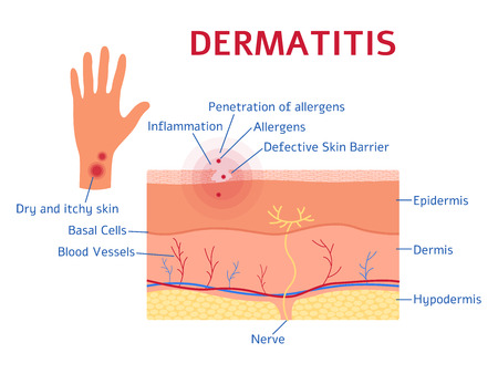 Dermatitis graphic diagram flat style, vector illustration isolated on white background. Educational medical scheme of eczema disease symptoms, skin layers and allergen movement