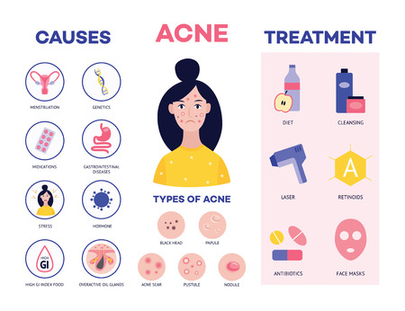 Medical poster showing the causes and methods of treating acne and types of skin lesions and pimples flat cartoon vector illustration. Beauty and facial care concept.