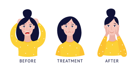 Woman face before, in the time of and after acne treatment procedures flat cartoon vector icons illustration isolated on white background. Skin care and health concept. Ilustração